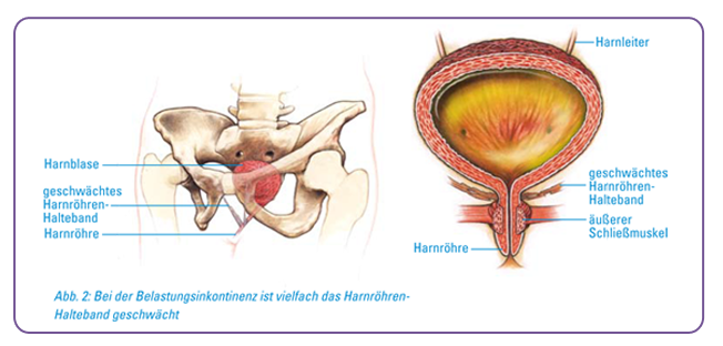 therapie bei blasenschwäche - dr bumbu frauenarzt schwabmünchen
