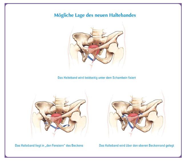 beckenbodentraining nach gebärmutterentfernung