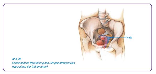 Therapie bei Beckenbodensenkung - Dr Bumbu Frauenarzt Schwabmünchen